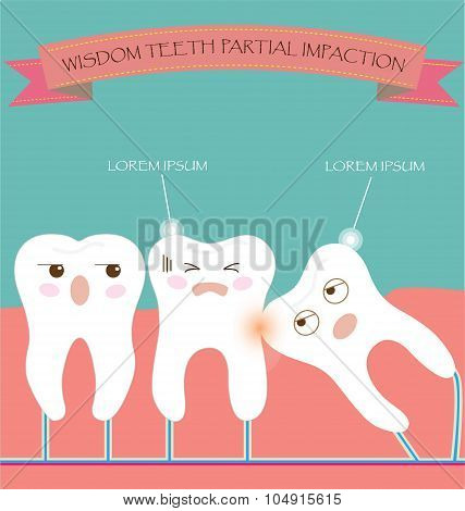 Wisdom Teeth Partial Eruption Impaction