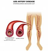 Постер, плакат: Leg Artery Disease Atherosclerosis