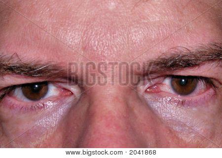 Slightly Bloodshot Eyes