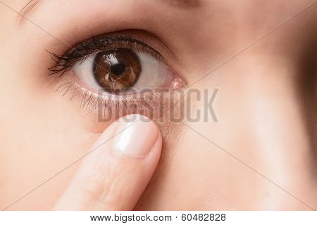 Close Up Of A Contact Lens In An Eye