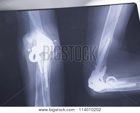 Surgical Implant Arm Elbow Xray Test Scan