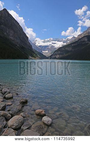 Lake Louise Vista