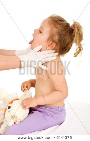 Little Girl With Small Pox At The Doctors