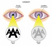 picture of cataract  - medical illustration of the effects of the Cataract - JPG