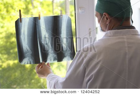 doctor watching x-ray pictures
