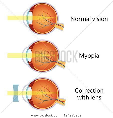 Myopia and myopia corrected by a minus lens. Eye vision disorder.