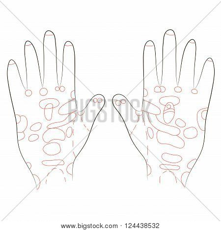 The palms of the hands with massage zones corresponding to specific organs of the human body