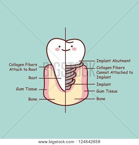 cute cartoon tooth implant anatomy great for health dental care concept