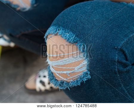 Torn jeans knee fashion, torn, tattered, skin