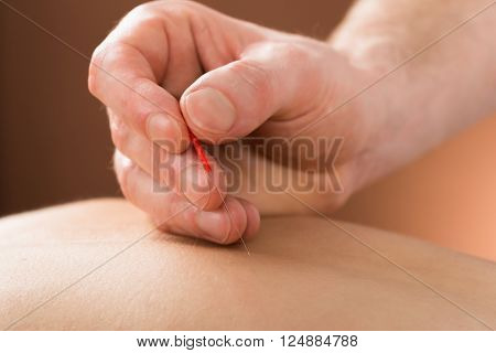 Close-up Of A Young Person Receiving Acupuncture Treatment In A Beauty Spa