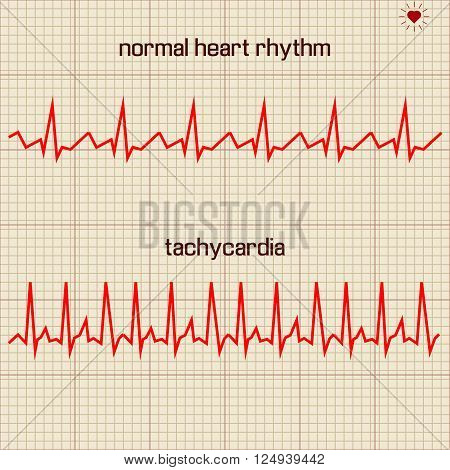 Vector illustration set Heart beats cardiogram 1