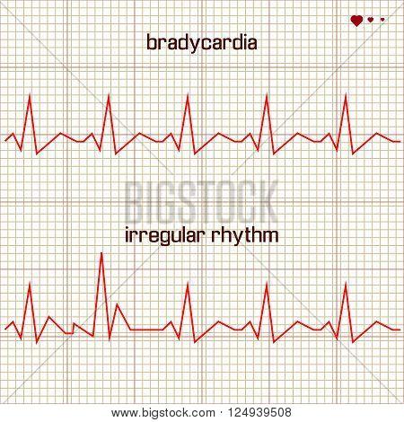 Vector illustration set Heart beats cardiogram 2