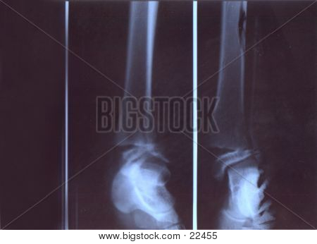 Radiografía de la pierna rota