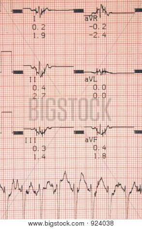 Cardiological Tests Results
