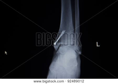 X-ray Orthopedics Scan Of Ankle Foot Injury Screw Implant