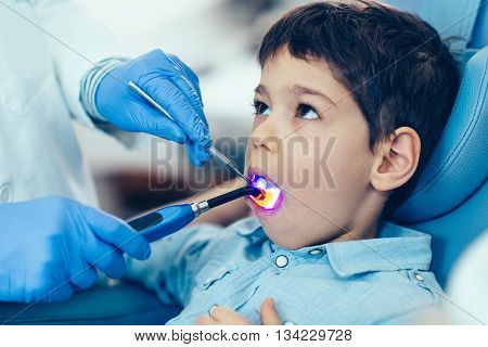 Dentist drying of the dental filling boy's tooth