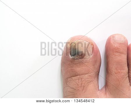 Toe nail with bruise isolated on white background with copy space