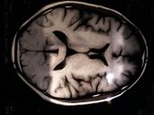 stock photo of angiogram  - photo taken of brain scan taken for brain tumor test  - JPG