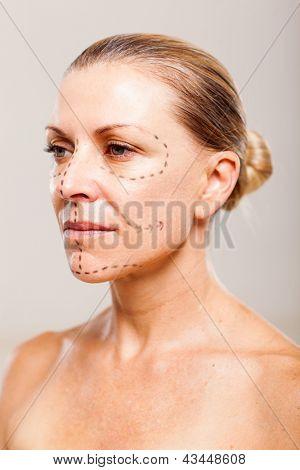 senior woman patient before plastic surgery