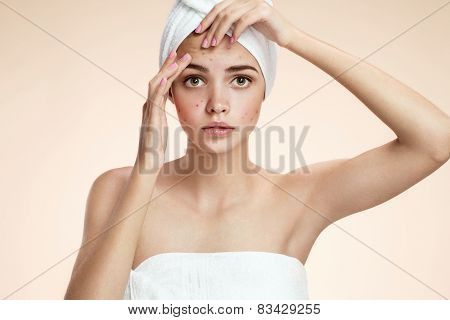 Young person squeezing her pimples, removing pimple from her face.  Woman skin care concept