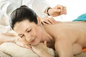 foto of spinal-column  - the very pretty young woman on acupuncture treatment horizontal portrait - JPG