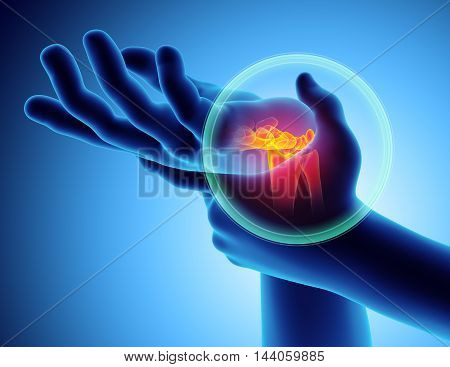 Wrist painful - skeleton x-ray 3D Illustration medical concept.