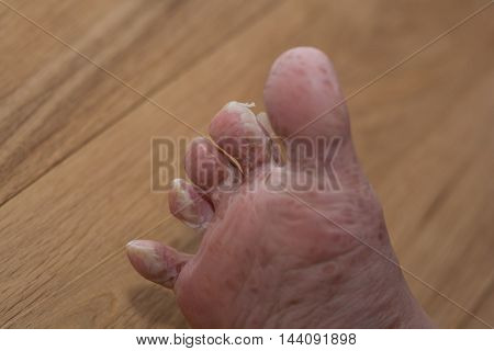 Skin dissolves after viral skin disease from the foot - clse-up