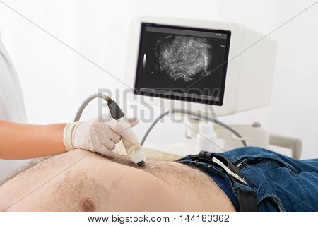Close-up Of Doctor's Hand With Ultrasound Scan On Abdomen Of Male Patient In Clinic