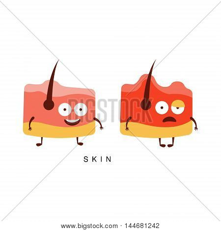 Healthy vs Unhealthy Skin Infographic Illustration.Humanized Human Organs Childish Cartoon Characters On White Background