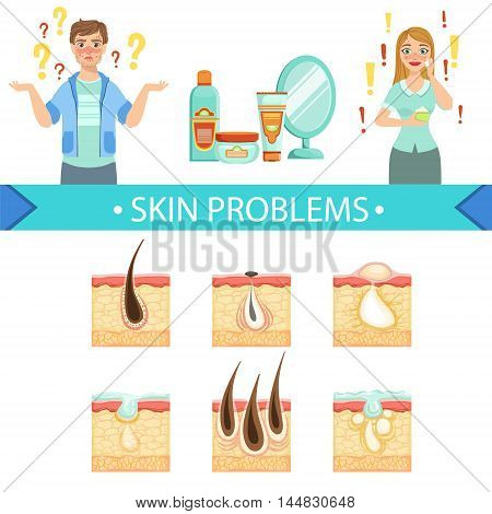 Skin Problems Infographic Medical Poster. Cartoon Style Healthcare Acne Issue Info Illustration. Flat Vector Simplified Illustration On White Background.