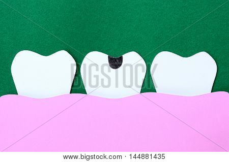 paper cut decayed tooth for dental background