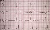 Real Tape With The Cardiogram Of Man. Image Of Electrocardiogram Close-up. poster