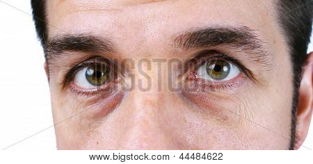 Man's Vey Tired Eyes