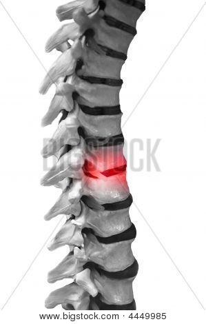 Spinal Column Red