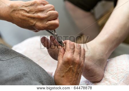 Podologist Gives A Medical Treatment