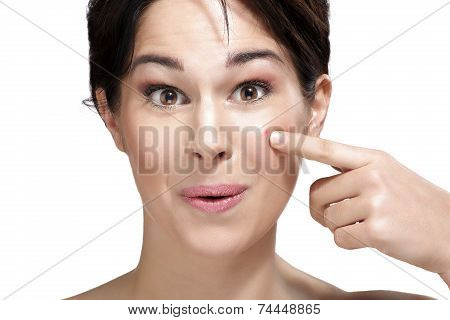 Beautiful Young Woman Showing A Pimple On Her Face