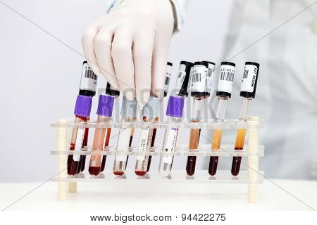 Stand of test tubes with blood
