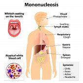 image of human internal organ  - mononucleosis - JPG