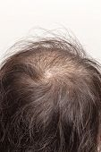 foto of hairline  - focus lose one - JPG