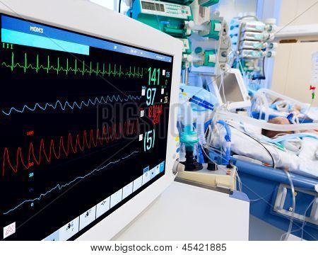 UTI pediátrica com monitor de ECG em primeiro plano