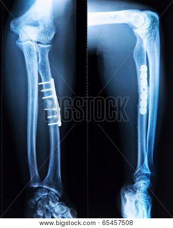 X-ray Of Fractured Leg Bone