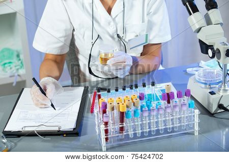 A woman wearing white coat and white medical gloves holding a urine sample in his hand