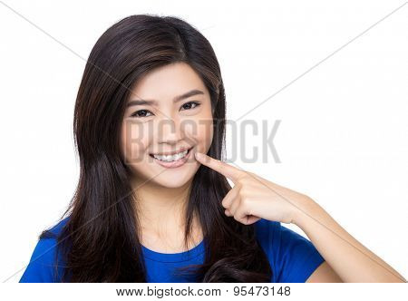Woman finger point to her teeth