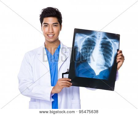 Young doctor holding with x ray film