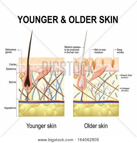 Human skin changes or ageing skin. A diagram of younger and older skin showing the decrease in collagen fibers atrophy and broken elastin formed wrinkles hair becomes gray in the elderly.