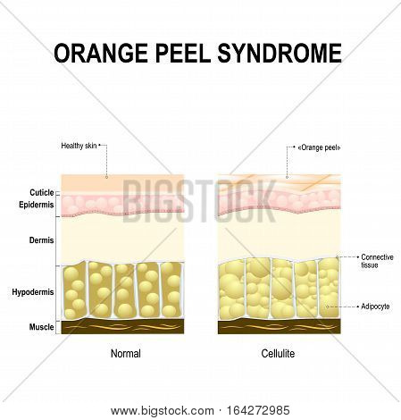 Cellulite also known as orange peel syndrome. healthy skin and skin with cellulite