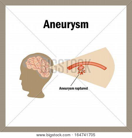 Break anevrizmy.Krovoizliyanie brain. Stroke, atherosclerosis, aneurysm Cholesterol plaques Infographics Vector illustration
