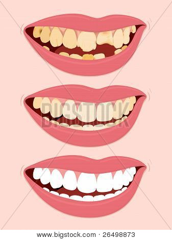 Picture or Photo of Progressive Stages Of Tooth Decay, illustration of open female mouth showing three steps to rotten teeth