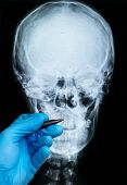 X-ray Of Human Skull With Doctors Hand In Glove poster