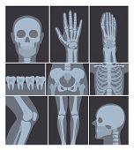 Vector Illustration Set Of X-rays Shots. Hand, Head, Knee, And Other Parts Of Human Body On X Ray Sh poster
